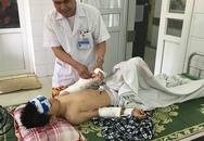 Bé trai 10 tuổi bị mảnh kính cứa đứt động mạch tay