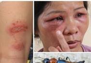 Hà Nội: Kiến ba khoang lộng hành, nhiều người bị đốt thê thảm