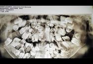 Sốc: Bé trai 9 tuổi mọc gần 300 chiếc răng trong miệng