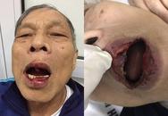 Hà Nội: Đi tập thể dục, một tiến sĩ bị đánh nhập viện
