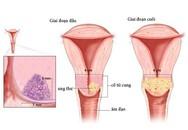 4 bước phát hiện sớm ung thư cổ tử cung