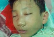 Sau khi bị đưa lên công an xã: Một học sinh lớp 9 bị đánh vẹo mũi