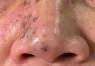 Hậu quả đáng sợ khi chị em tiêm filler để làm đẹp khuôn mặt