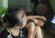 Rơi nước mắt trước tâm sự của mẹ già có con gái 9x bị chồng thiêu bằng xăng