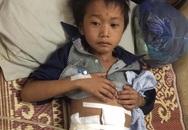 Nghẹn ngào cậu bé 9 tuổi bị trâu húc lòi ruột chỉ ăn cơm trộn nước trắng khi nằm viện điều trị