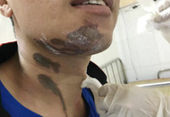 Bỏng nặng khi bị hóa chất tẩy rửa bồn cầu văng trúng