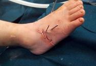 Nghịch máy làm miến, bé 2 tuổi ở Hà Nội bị đứt lìa chân phải