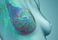 7 loại ung thư có khả năng chữa khỏi