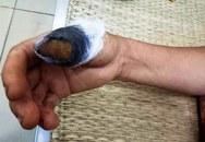 Nghệ An: Hai người đàn bà ẩu đả, cắn nhau đứt lìa 1 ngón tay