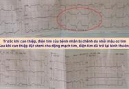 Đua thời gian cứu tài xế xe ôm bị nhồi máu cơ tim