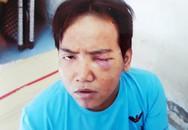 Phường ở TP HCM không biết 'bảo vệ dân phố sát hại bé trai' bị tâm thần