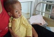 Rớt nước mắt hình ảnh bé gái 4 tuổi chỉ nặng hơn 3kg