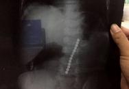 Bé trai nhập viện cấp cứu sau khi nuốt 13 viên bi nam châm