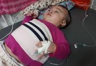Xót xa bé trai 17 tháng tuổi mất dần sự sống vì bại não