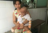 Cô bé 2 tuổi mất cả tứ chi vì viêm não mô cầu
