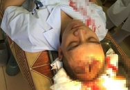 Vụ bác sỹ bị hành hung tại bệnh viện: Có thể xem xét xử lưu động để tăng tính răn đe