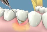 Cách hạn chế cao răng