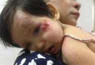 Xác định nam thanh niên tông bé gái 11 tháng tuổi trầy xước mặt rồi bỏ chạy