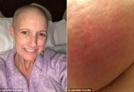 Chỉ bị phát ban trên da, bà mẹ 2 con sốc nặng khi được chẩn đoán mắc bệnh ung thư