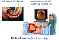 Loại ung thư khiến nhiều người nhầm bệnh... trĩ