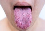 Điều gì xảy ra nếu bạn không vệ sinh lưỡi