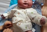 Được bác sĩ thông báo trước nhưng bố mẹ vẫn không thể ngờ con sinh ra thế này