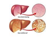 Gan nhiễm mỡ vì ăn kiêng để giảm cân nhanh