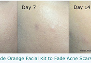 4 bước đánh mờ sẹo thâm chỉ sau 2 tuần là có kết quả rõ rệt