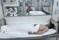 Ăn mừng ngày 20/11, 10 giáo viên mầm non phải nhập viện cấp cứu