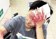"""Cô gái """"thánh nhọ"""" đã không được ăn lại bị nhân viên nhà hàng đánh vỡ đầu nhập viện"""