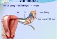 Lần đầu chữa vô sinh do tắc vòi trứng bằng kỹ thuật nong nội soi