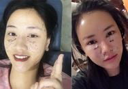 Maya công khai hình ảnh phẫu thuật thẩm mỹ ở Hàn Quốc