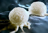 """Phát hiện sự """"xảo quyệt"""" của tế bào ung thư"""