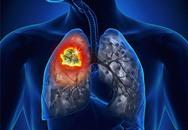 Nghe nước chảy trong phổi, cô gái 22 tuổi phát hiện bị ung thư
