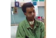 Chàng trai bị ung thư miệng ở tuổi 24 do hút thuốc quá nhiều