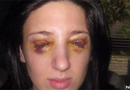 Nhắm mắt 3 ngày, mở mắt 3 ngày suốt 13 năm vì bệnh lạ