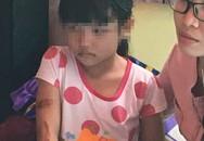 Thông tin mới nhất vụ bé gái 7 tuổi nghi bị cha dí sắt nóng vào mặt