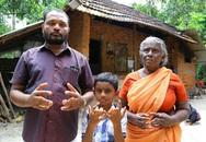 Gia tộc có 140 người bị dị tật dính ngón tay