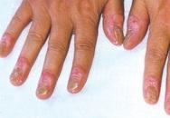 Nghiên cứu mới điều trị bệnh vảy nến móng
