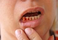 4 dấu hiệu ở miệng cảnh báo bệnh nguy hiểm