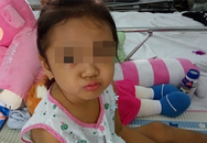 Bé gái vàng da tắc mật do khối u ở gan