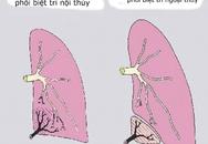 Bé gái có 'phổi biệt trí'