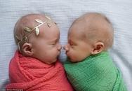 Bộ ảnh xúc động của cậu bé chỉ sống được 11 ngày bên em gái song sinh