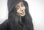 19 tuổi, cô ấy phẫu thuật thẩm mỹ 50 lần để giống Angelina Jolie, 10 năm sau, kết quả cuối cùng?