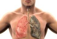 Cận cảnh kinh hoàng các bệnh do hút thuốc lá gây ra