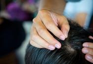 """Tóc bạc sớm khiến bạn """"già trước tuổi"""", bác sĩ chỉ ra 2 giải pháp giúp chữa tận gốc"""