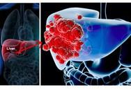 Nhận biết 6 dấu hiệu ung thư gan trước khi quá muộn