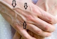 Nên làm gì khi thấy những gân xanh nổi trên người: Giáo sư Anh chia sẻ cách xử lý