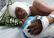 Xót xa bé trai 7 tuổi người dân tộc bỏng toàn thân vì tự bật bếp gas nấu mì