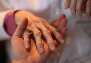 Viêm khớp dạng thấp có điều trị khỏi?
